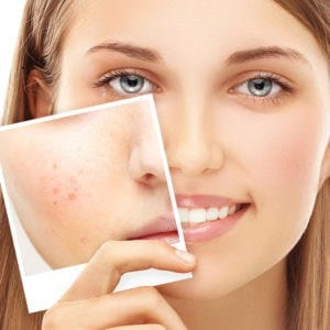 acne tips hollyberry cosmetics